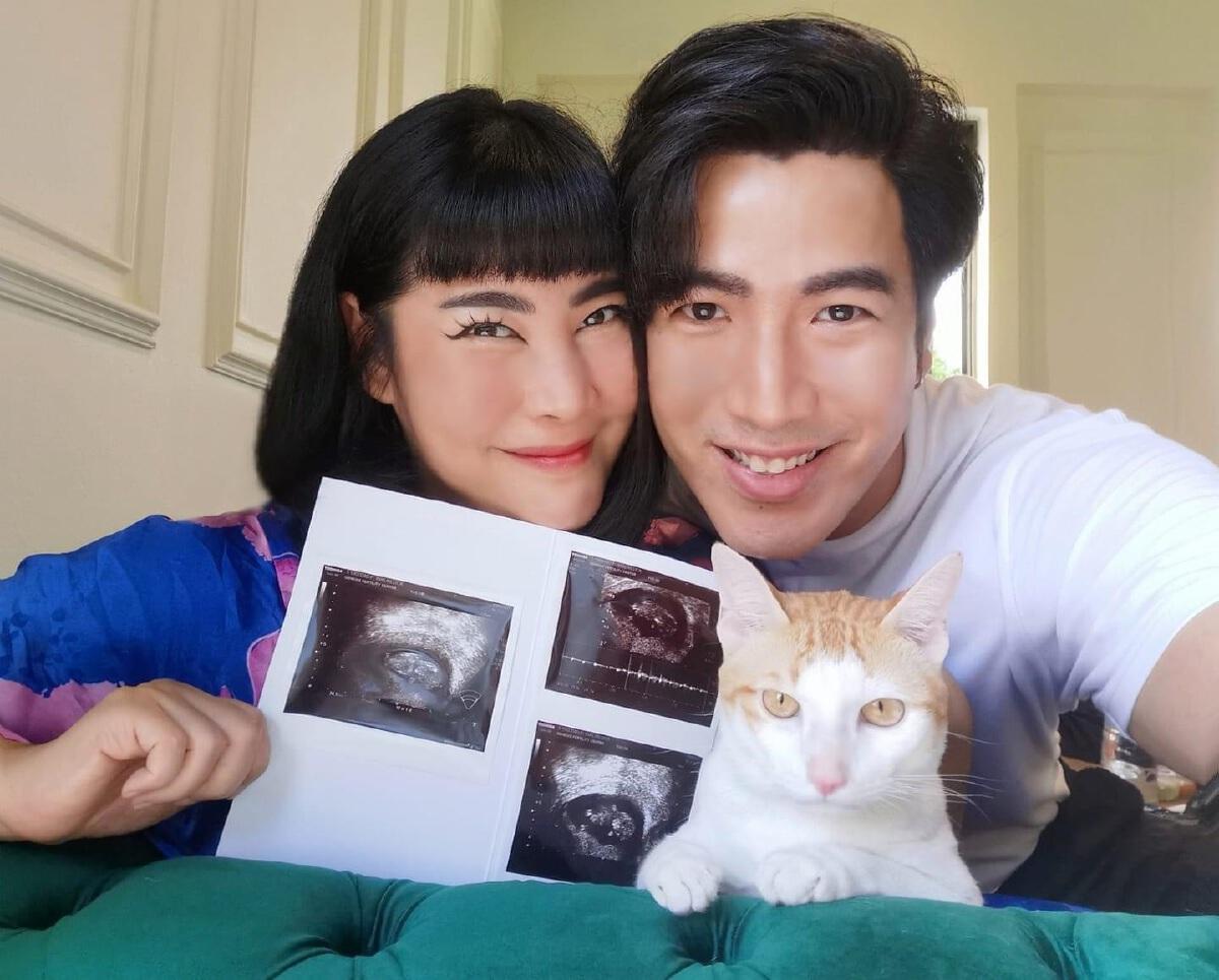 โย่ง อาร์มแชร์ ประกาศข่าวดี ภรรยาท้องลูกคนแรกแล้ว หลังรอมานาน  9 ปี