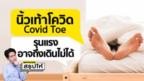 นิ้วเท้าโควิด Covid Toe คืออะไร? อาการหลังป่วยโควิด เป็นแล้วอาจเดินไม่ได้!